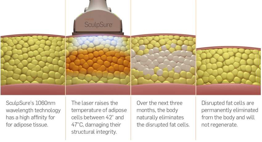 sculpsure-body-nyc