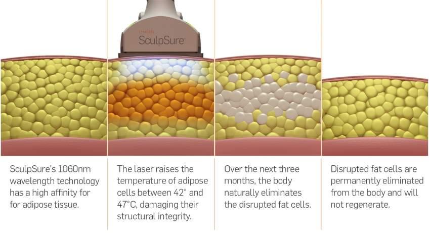 SculpSure vs CoolSculpting [The Latest in Body Contouring